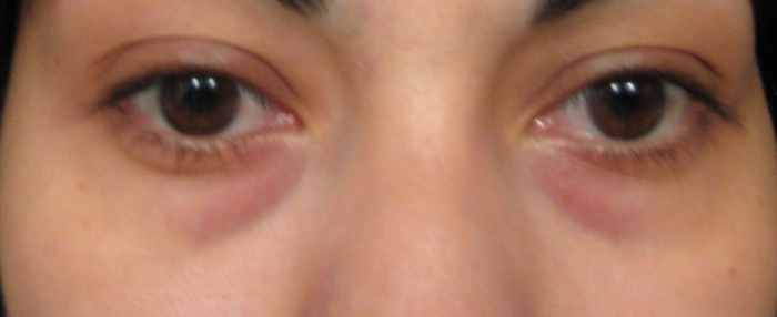 Мешки под глазами у беременных 98