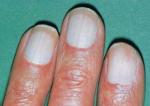 Почему у детей белые пятна на ногтях