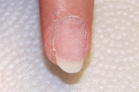 Слоятся ногти на руках что делать витамины