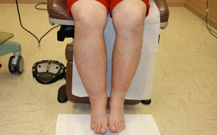 Как улучшить лимфоотток в ногах в домашних условиях