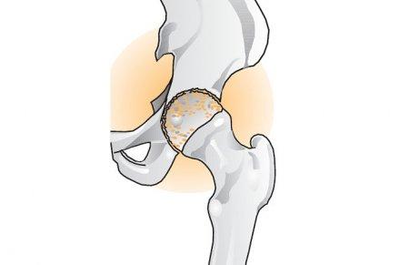Лечения тазобедренного сустава после перелома в китае