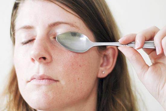 Синяки под глазами лечение в домашних условиях