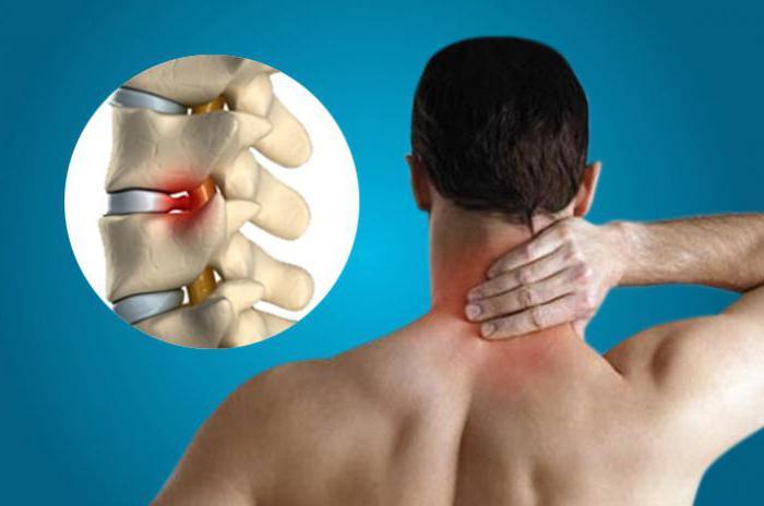 Проходит ли остеохондроз без лечения
