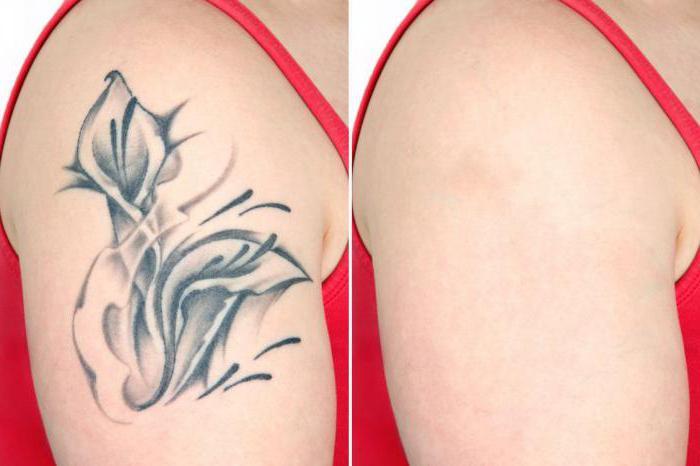 Удаление татуировок лазером новосибирск