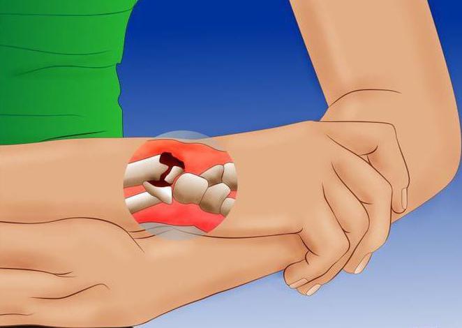 После снятия гипса рука горячая почему