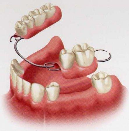 дырки какие бывают протезы для зубов и цены дома так подрочить